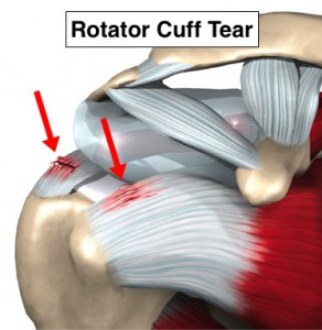 shoulder injury and joint tear