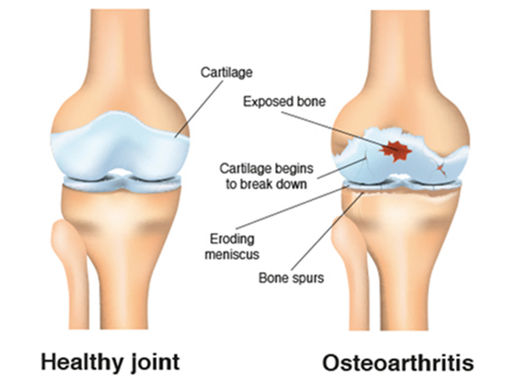 healthy knee joint and knee osteoarthritis oa comparison, Skeleton