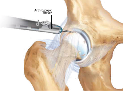 hip cartilage arthroscopic shaver