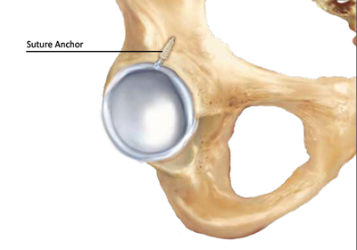labral hip tear repair